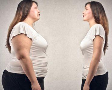 mide küçültme